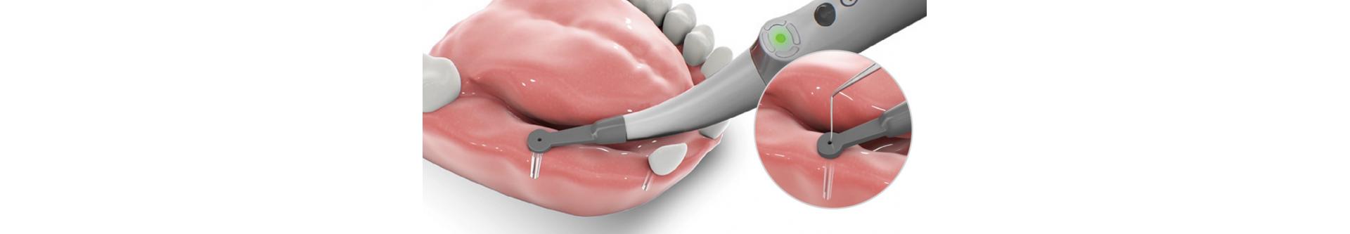 Implant detector